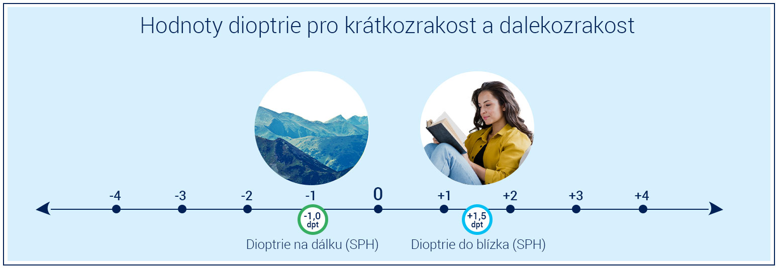 dioptre values for myopia and hyperopia