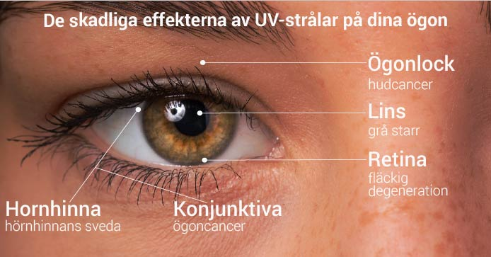 The damaging effets of UV rays on your eyes
